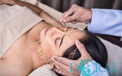 Benefits of aesthetic acupuncture.