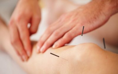 Acupuncture Alleviates Knee Arthritis Confirmed