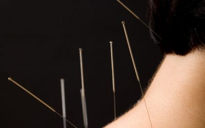 Acupuncture Neck Pain Finding